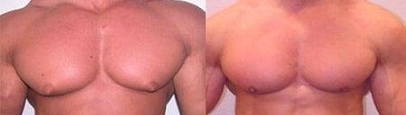 Reduce man boobs